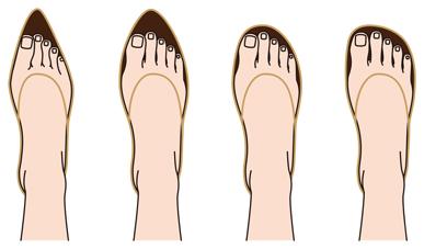 Туфли и врастание ногтей