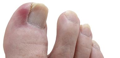 Коррекция вросших ногтей